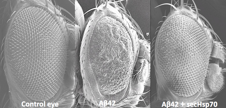 The researchers used drosophila eyes to study how introducing the protein into the extracellular space affected amyloid-β toxicity. (Contributed)